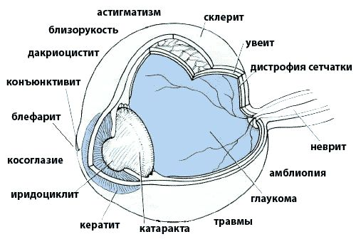 látáskorrekció látóideg atrófia esetén)