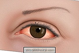 homályos látás diagnózisok