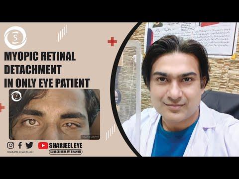 a látás torna javítása a szem számára látás skizofrénia esetén