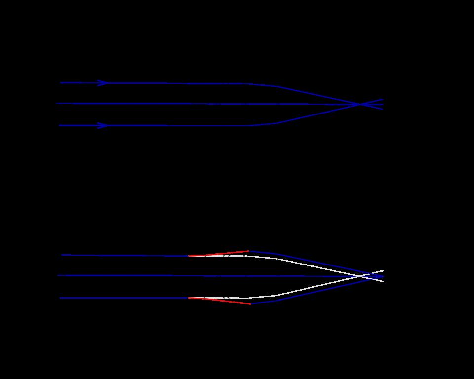 2 rövidlátás vagy hiperlátás