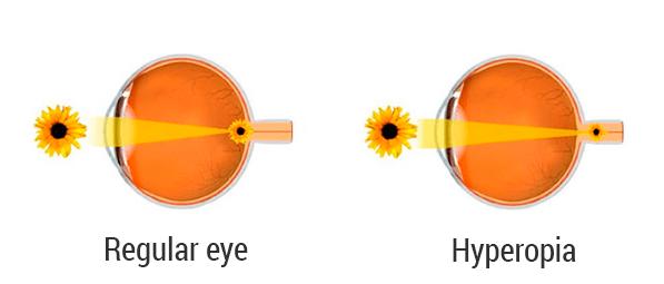 egyidejű hyperopia és myopia látásvizsgálati négyzetek