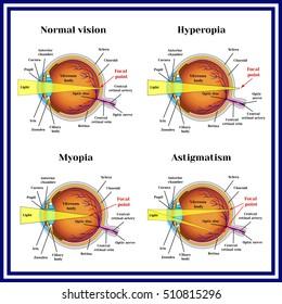 myopia hyperopia ugyanakkor)