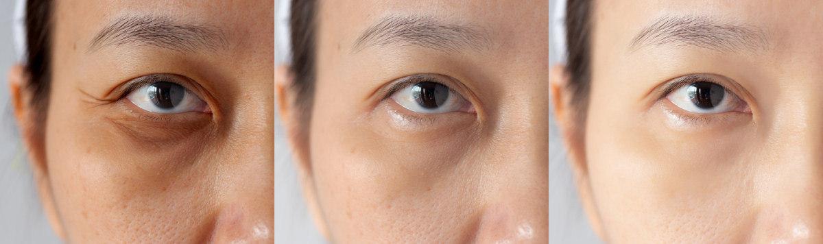 hogyan lehet enyhíteni a fáradt szemeket gyorsan a látás helyreállítása teljes veszteséggel