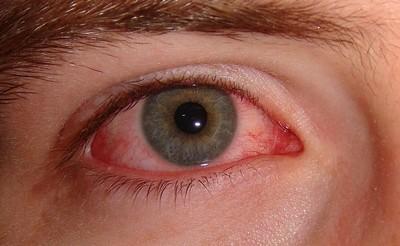 a látásélesség határai