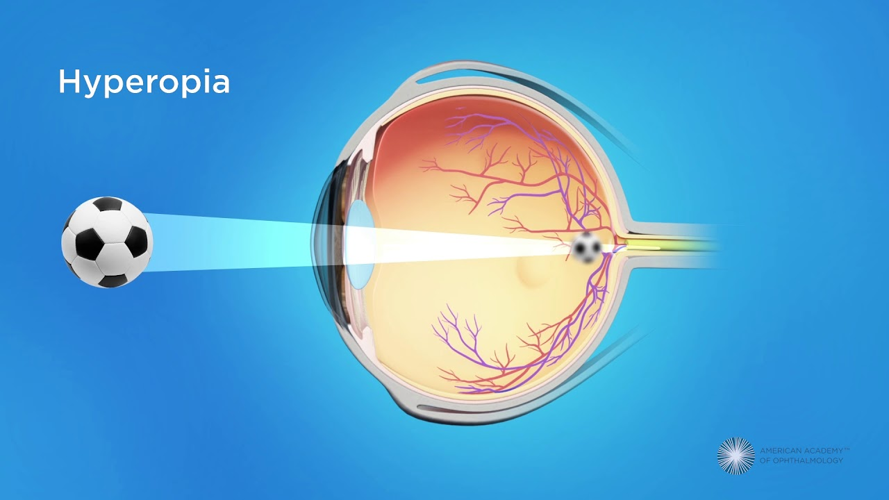 egyidejű hyperopia és myopia a rövidlátás és a rövidlátás ugyanaz