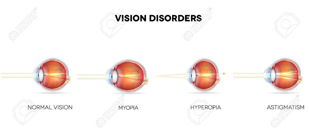 Mi a myopia és a hyperopia - Gyulladás September