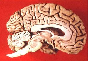 az agy lebenyei, amelyek felelősek a látásért