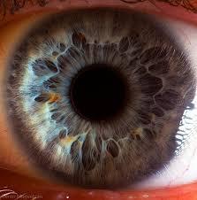 coloboma szeme látása