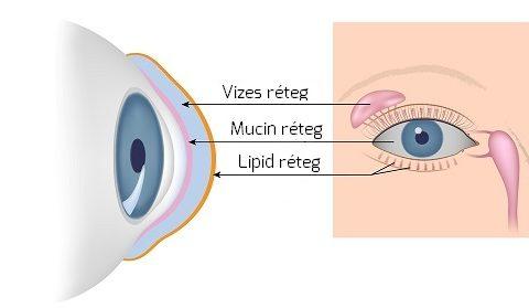 rövidlátás vizes szemek