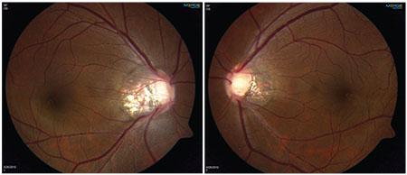 Myopia glaucoma cukorbetegség