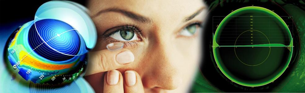 mit jelent a látás mínusz 4