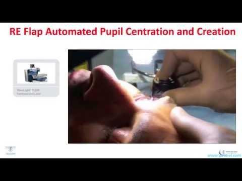 hiperopiás kezelés videó