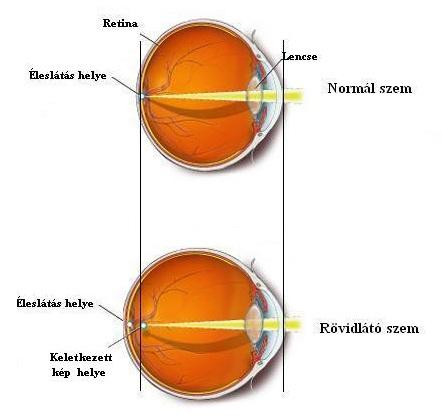 látás távollátás, ahogy a szem látja)
