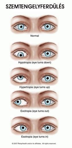 a látás csökkent és a szemek fájtak