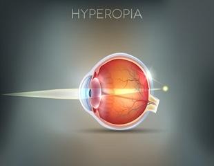 hyperopia 9 év)