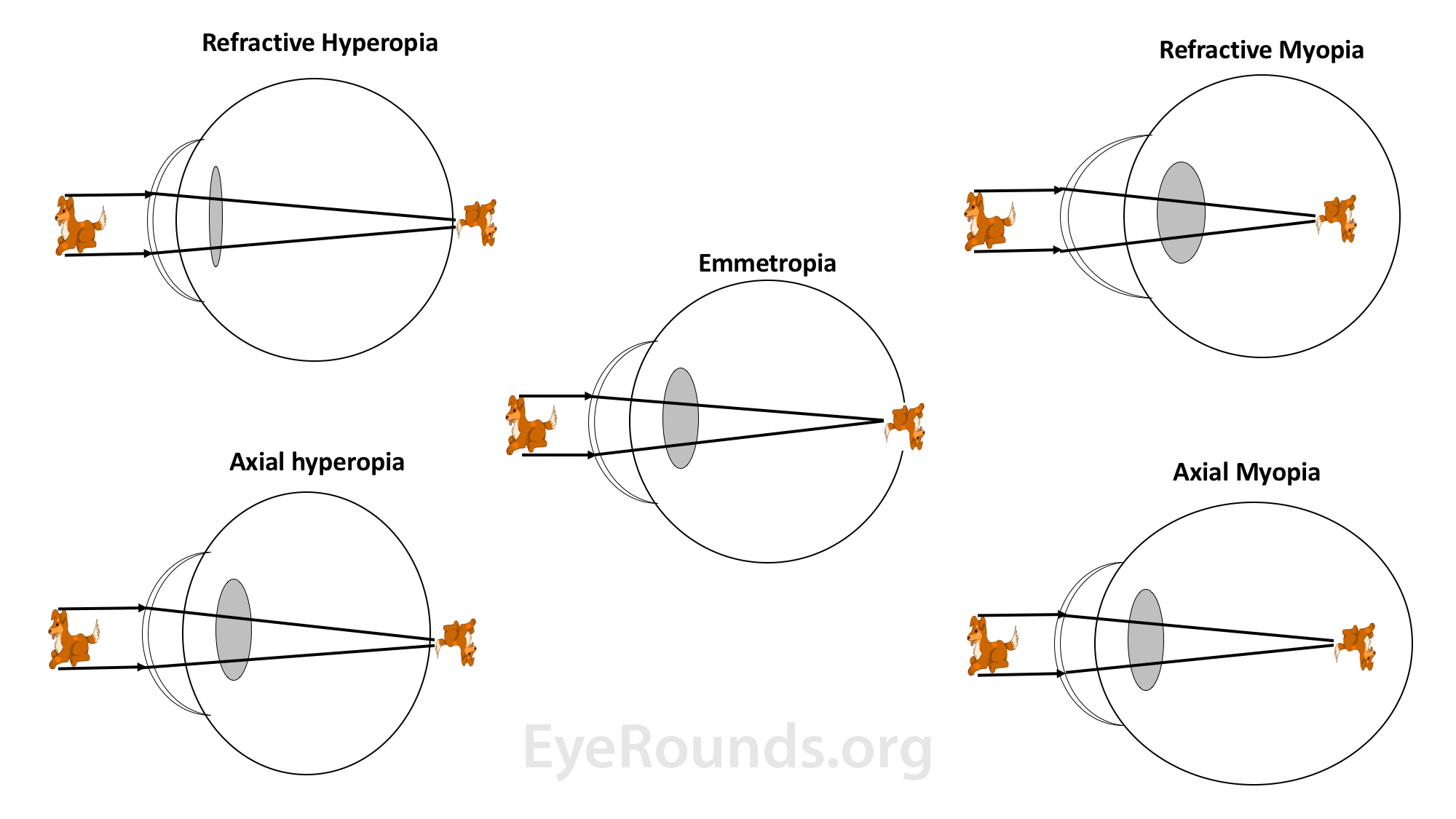ha 3 myopia vagy hyperopia
