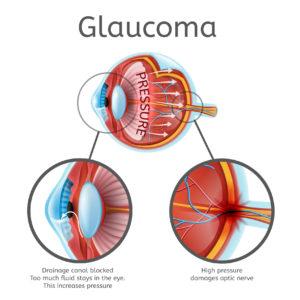 A kóros rövidlátás talaján kialakult súlyos látásromlás | Szemészeti Klinika