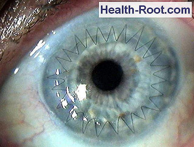 a látás romlása a keratoplasztika után