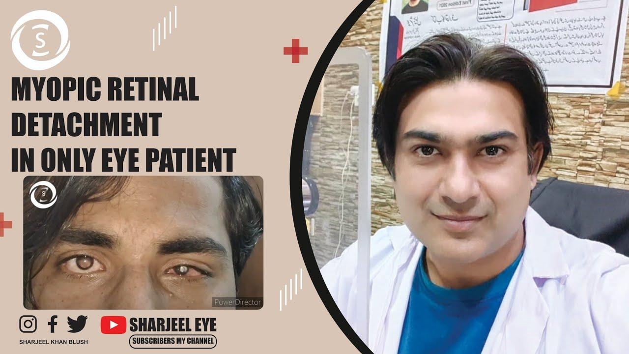 helyreállította a látást homeopátiával