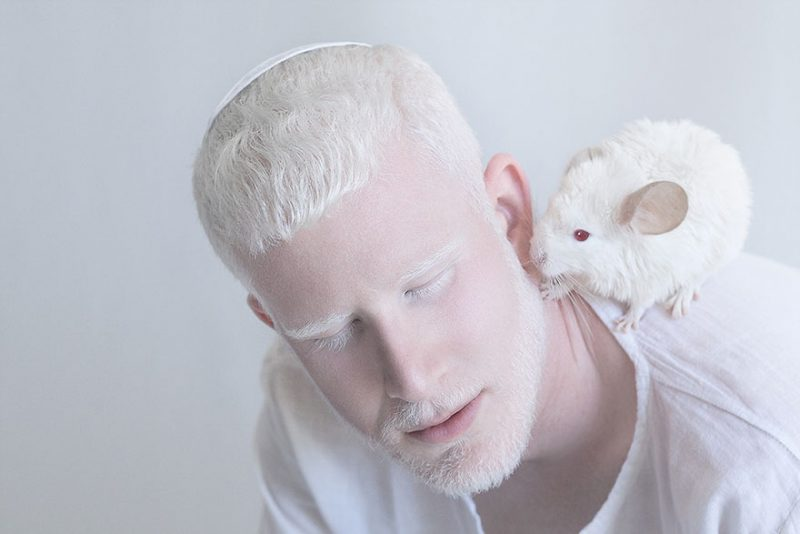 albínó emberek látási problémák)