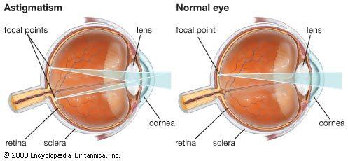 az egyik szem látás torzulása