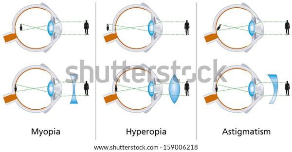 myopia hyperopia ugyanakkor