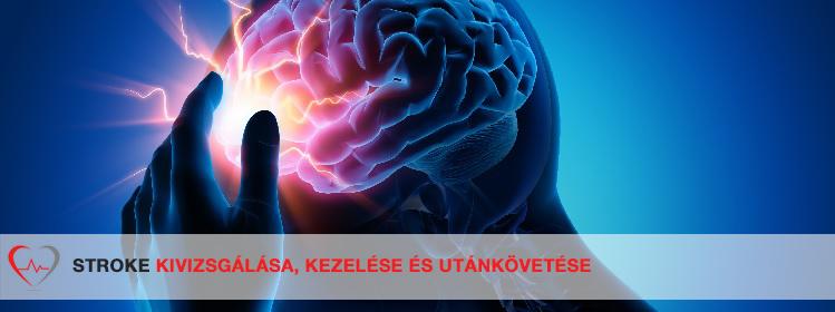 Dubynin agya és látása)