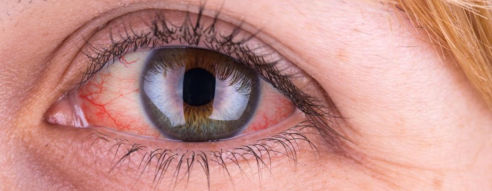 a jobb szem látása hirtelen leesett