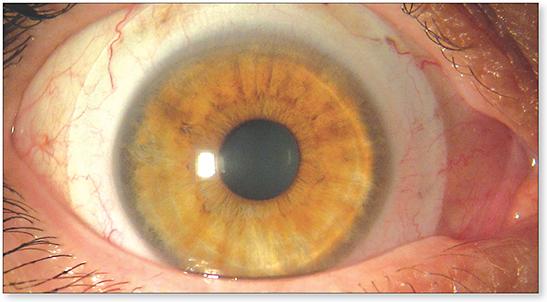 sclera szeme myopia