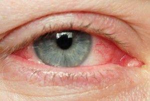a látás gyógymódjai