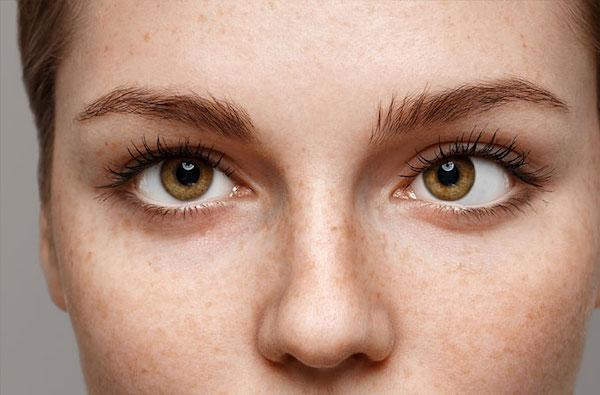 a szemek látásélessége eltérő