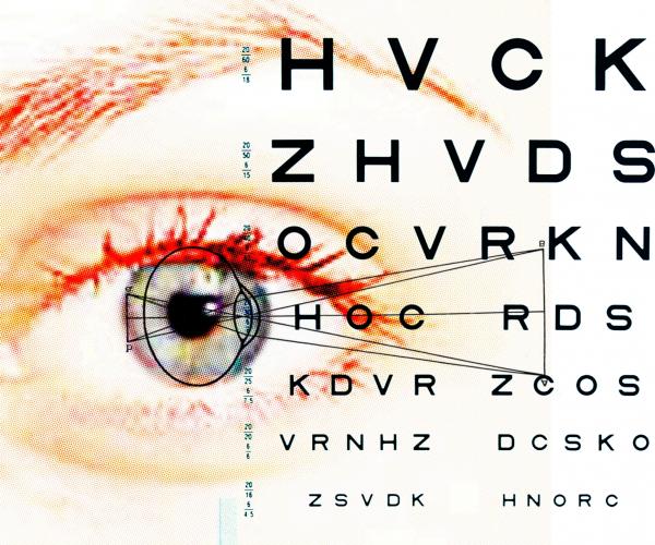 a látás rendhagyó kezelése)
