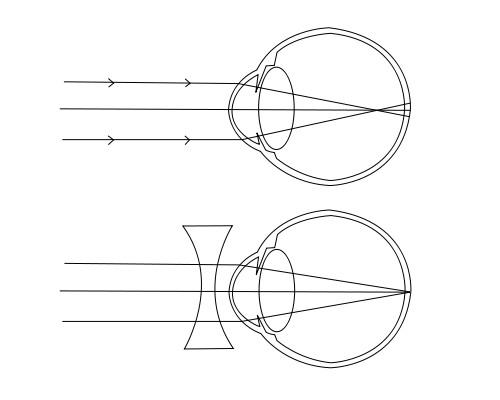 rövidlátás nyúlik milyen távolság van az asztalhoz látás vizsgálatakor?