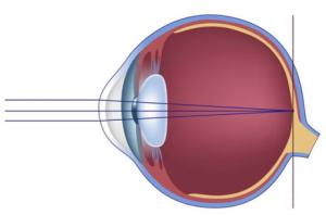 myopia hyperopia mi ez