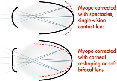 myopia és hyperopia megjelölés)