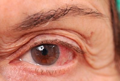A száraz szem tünetei, okai és kivizsgálása