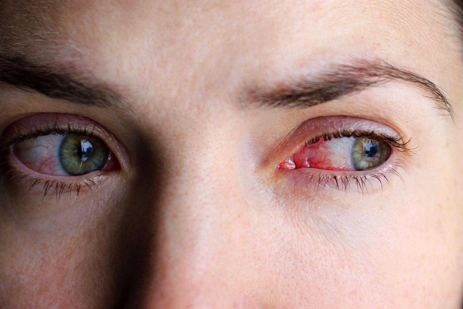 karikák a szem alatt és rossz látás)