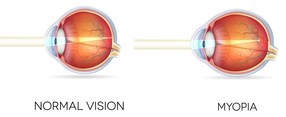 myopia vagy myopia)