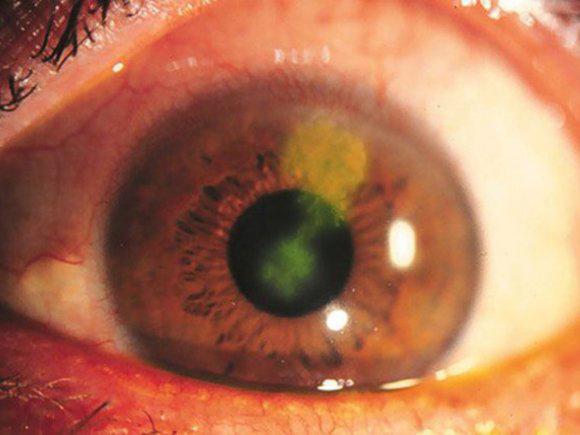 keratitis csökkent látás myopia és hyperopia mínusz plusz