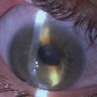 hyperopia mindkét szemében