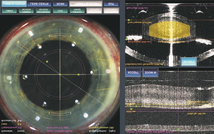 szemészeti fluoreszcens csíkok