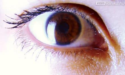 A leggyakoribb oka a villogásnak a szemben: a tünetek és a kapcsolódó betegségek minden változata