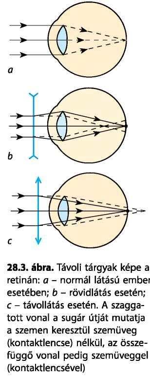 látásteszt diagram betűkkel amikor az 5. látomás