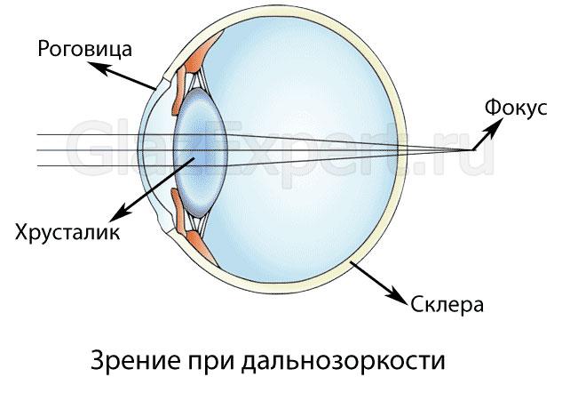 Veleszületett myopia astigmatizmussal Hyperopia myopia astigmatizmus
