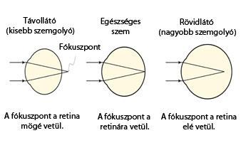 Fejlődési rendellenesség | Új Szó | A szlovákiai magyar napilap és hírportál