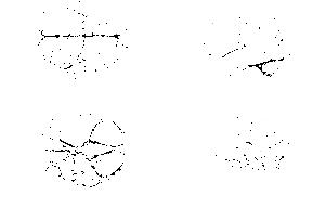 az agy lebenyei, amelyek felelősek a látásért)