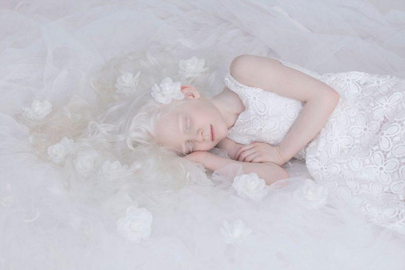 Albinizmus tünetei és kezelése