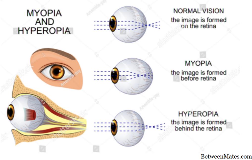 hyperopia oka