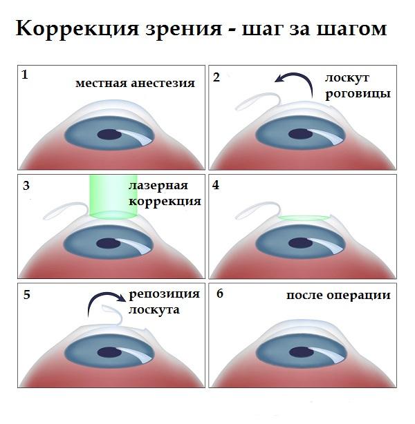 látásműtét asztigmatizmus)