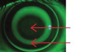 kezdeti myopia kezelés